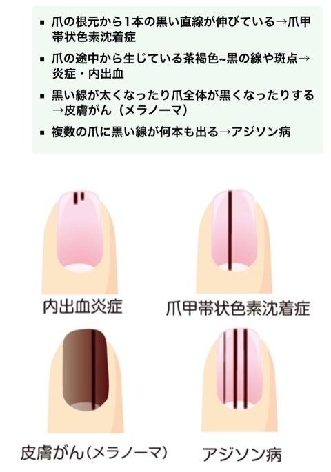 爪の内出血 | トーシロー日記(S...