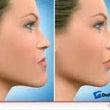 顎変形症のカンファレ…