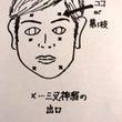 目の奥が痛む女性(三…