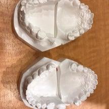 歯列矯正の前と後