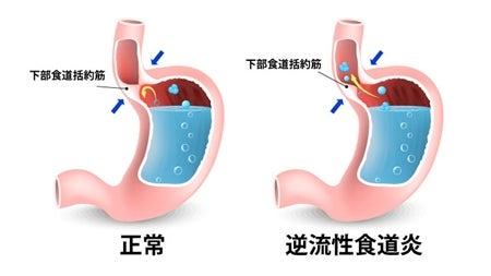 妊婦 逆流性食道炎