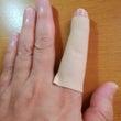 指が腫れだして、ウク…