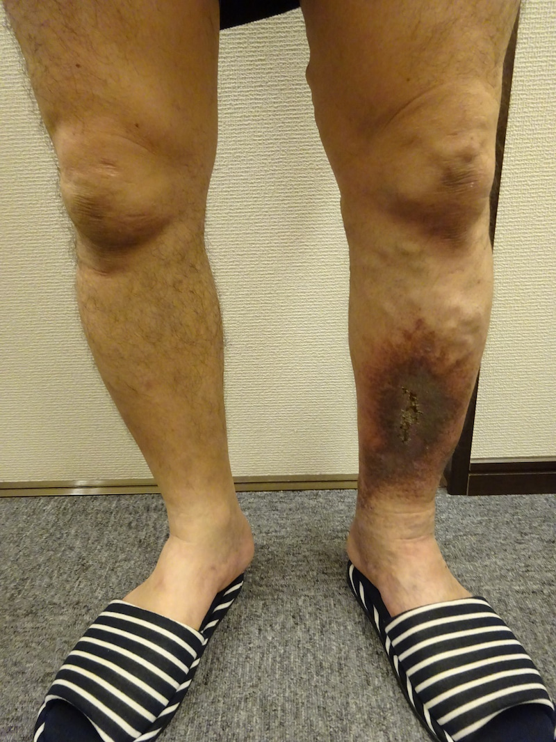 小倉下肢静脈瘤クリニック症例写真№63 うっ滞性皮膚炎