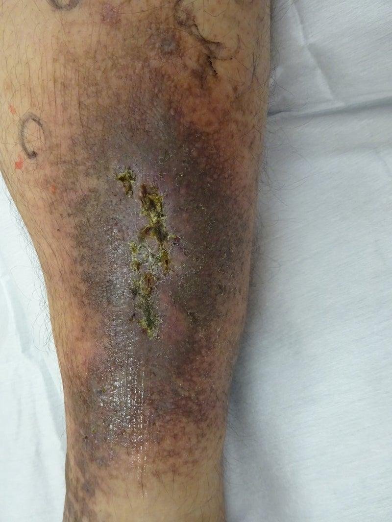 症例写真№63 うっ滞性皮膚炎 | ...
