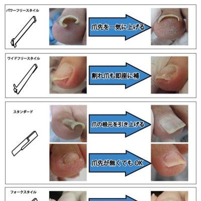 ペディグラス巻き爪補正アドバンスコースのご案内の記事に添付されている画像