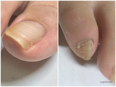 ボコボコ 表面 爪 の