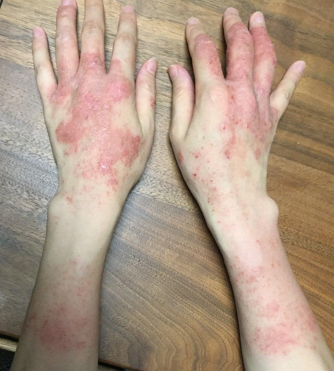 痒い 腕 に 湿疹