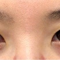 6年越しの眉下切開、美容外科ナースの『本当にオススメしたいのはコレだ!』の記事に添付されている画像