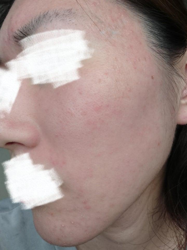 皮膚 ブログ 脂 完治 漏 炎 性