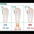 重心移動と外反母趾の…