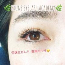 prune eyel…