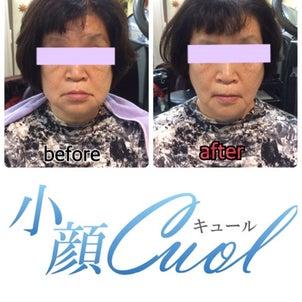 【小顔1回目 ビフォーアフター】の画像