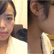 ID美容外科で両顎手…