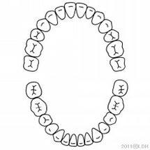 歯医者の話の延長線。…