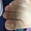 巻き爪再発