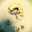 頭の形の左右差と頭痛…