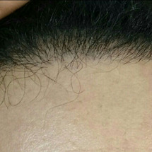 植毛手術から、まもな…