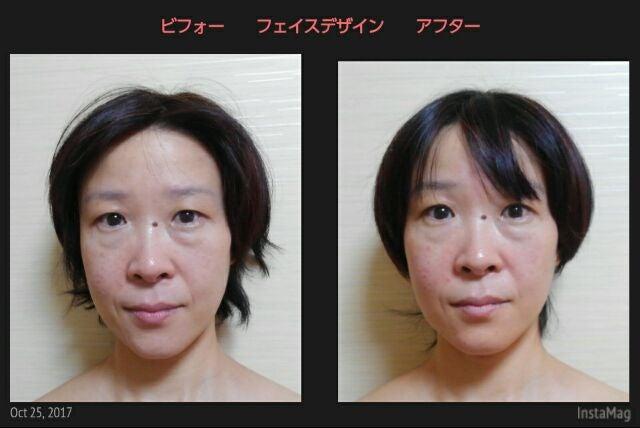 小顔つや肌フェイスデザイン