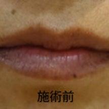 10月30日(月)唇…