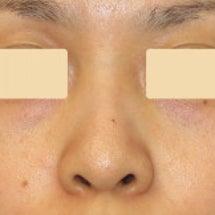 鼻尖形成術:鼻尖を高…