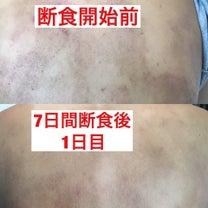 7日間断食  アトピーを治す沖縄旅療法の記事に添付されている画像