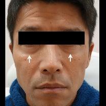 目の下~ベビーコラーゲン注入例~の記事に添付されている画像