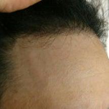 植毛手術から半年が過…