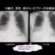 肺がん:オプジーボの…