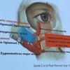 目の下のヒアルロン酸が膨らんだの画像
