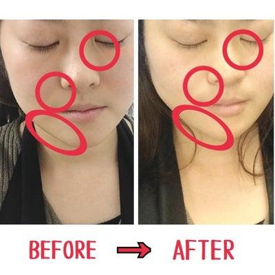 【整形じゃないよw】湘南美容外科クリニックに行ってきました!!の記事に添付されている画像