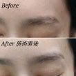 眉の傷跡カバー