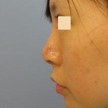 鼻中隔延長術 2回の…
