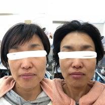 「寝てる間に顔が変わった(^.^)♪」の記事に添付されている画像
