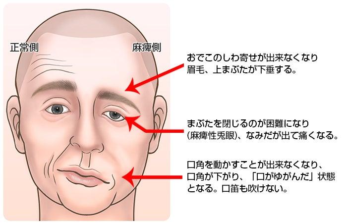ベル 麻痺 芸能人 TKO木下隆行さんが顔面神経麻痺!