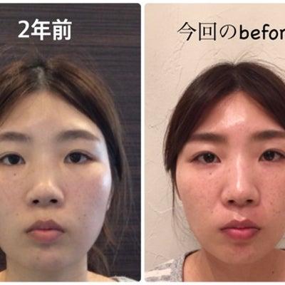 2年前に小顔矯正の施術に来られたお客様がブライダルに!!の記事に添付されている画像