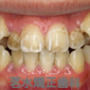 上下顎叢生の治療例
