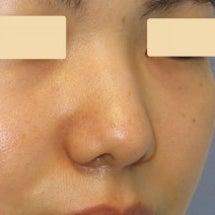 団子鼻の治療:鼻尖部…