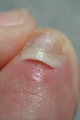 爪 根元 剥がれた
