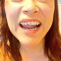 歯が欠けたのでライブ…