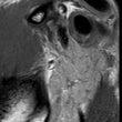 顎関節にMRI によ…