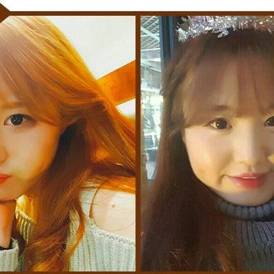 フェイスライン整形外科で小顔美人に変身:韓国整形ブログ☆彡の記事に添付されている画像