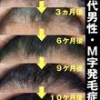東京港区六本木の薄毛…