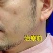 フォトフェイシャル経…