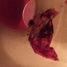 大腸癌剥離画像、病気…