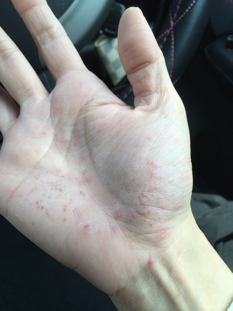 芸能人 掌 症 蹠 膿疱