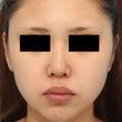 [症例写真]鼻中隔延…