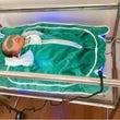 新生児黄疸