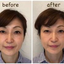 顔筋トレーニングのプロもさらに小顔にリフトアップの記事に添付されている画像