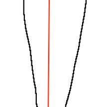 下肢のアライメント