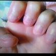 生まれ変わる爪